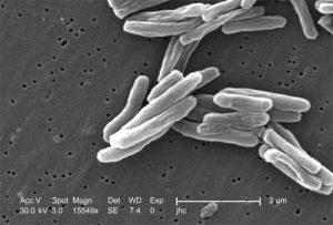 Gambar 2. Bakteri Mycobacterium tuberculosis, agen penyebab tuberkulosis